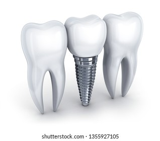 Dental implant and tooth on white background. 3d illustration.