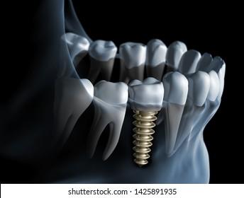 Dental implantat - implant - 3D illustration