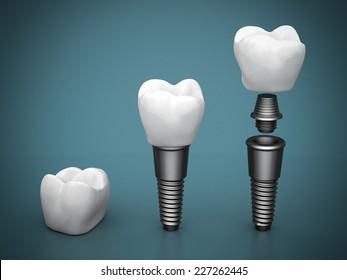 Dental implants on a beautiful blue background