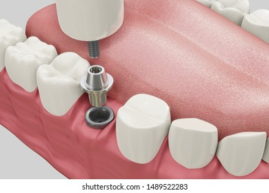 Dental Implants Treatment Procedure. Medically accurate 3D illustration dentures concept.