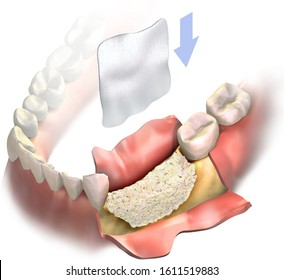 Dental membrane flying in air follow by arrow down, to be attached to bone graft on lower jaw after bone loss. Vertical bone regeneration. 3D illustration. Bone grafting. Augmentation Surgery.