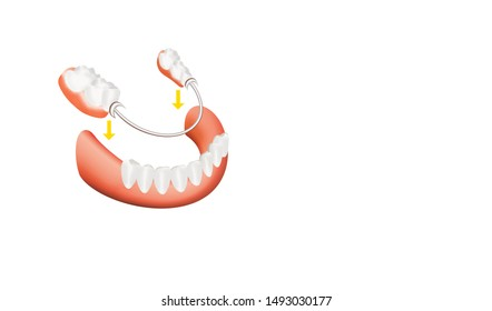 Dental skeletal prosthesis with porcelain crowns. Clasp prosthesis