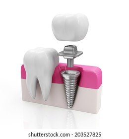 Dentistry Concept. Health Tooth and Dental implant isolated on white background