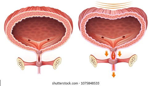 Descriptive and comparative anatomical illustration of the bladder with problems of urine and normal retention.