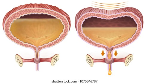 Descriptive and comparative illustration of the bladder with urinary and normal retention problems.
