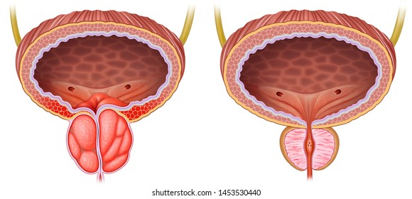 Descriptive and comparative schematic illustration of the enlargement and inflammation of the prostate, next to this we can see a healthy prostate.