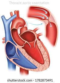 Descriptive illustration of an aortic coarctation, shows a narrowing in the aortic artery, causing an obstruction of its blood flow.