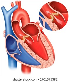 Descriptive illustration of aortic stenosis, valvular heart disease, characterized by abnormal narrowing of the orifice of the aortic valve of the heart.