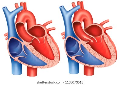 Descriptive illustration of aortic valve stenosis, the main artery that carries blood out of the heart, the aortic valve does not open completely and decreases blood flow from the heart.