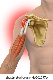 Descriptive illustration of a Biceps Tendinitis Tendon