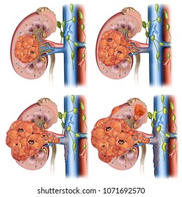 Descriptive illustration of the four phases of a malignant tumor of a kidney