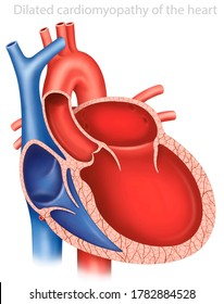 Descriptive illustration of myocardiopathy or hypertrophic cardiomyopathy, myocardial disease, a portion of the heart muscle is thickened.