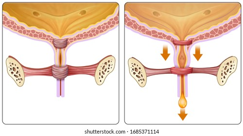 Descriptive illustration of the part of the bladder where urinary incontinence problems originate.