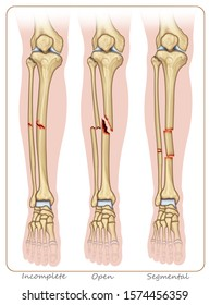 Descriptive illustration with three examples of tibial bone fractures, the first with incomplete fracture, the second with open fracture and the third with segmental fracture.