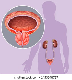 Descriptive schematic illustration of the enlargement and inflammation of the prostate, next to this we can see a male silhouette with this condition in his prostate.