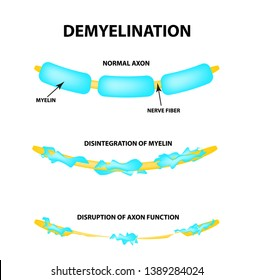 The destruction of the myelin sheath on the axon. Damaged myelin. Neuron affected by multiple sclerosis. World Multiple Sclerosis Day. Infographics. illustration on isolated background.