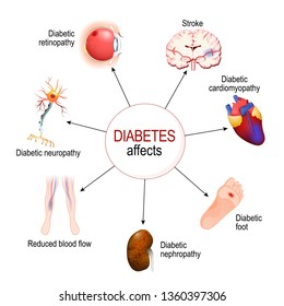 Diabetes Affects. Complications of diabetes mellitus: nephropathy, Diabetic foot, neuropathy, retinopathy, stroke; Reduced blood flow and cardiomyopathy. diagram for educational, medical, biological a