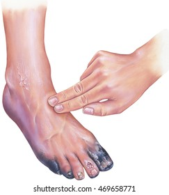 Diabetic Foot Images Stock Photos Vectors Shutterstock