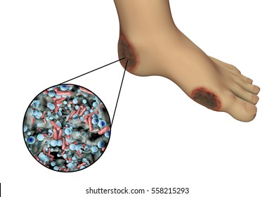 Diabetic foot infection with close-up view of bacteria, 3D illustration