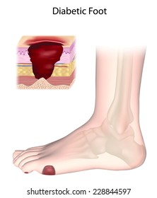 Diabetic foot with ulcers.