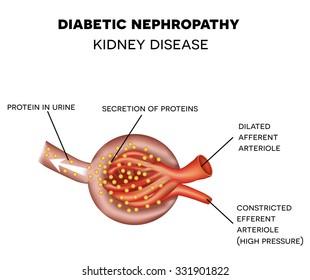 Diabetic Nephropathy causes the damage of glomerulus, kidney disease.