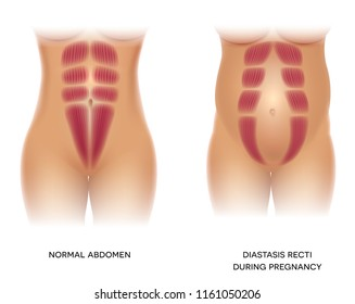 Diastasis Recti during pregnancy, also known as Diastasis Rectus Abdominus or abdominal separation, it is common among pregnant women and post birth. There is a gap between muscles. 3D illustration