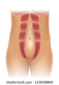 Diastasis recti also known as abdominal separation, it is common among pregnant women. There is a gap between the rectus abdominis muscles.