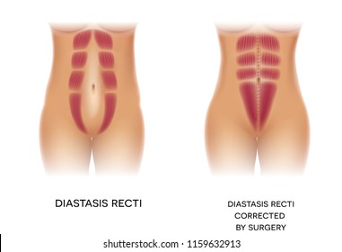 Diastasis Recti also known as Diastasis Rectus Abdominis or abdominal separation, it is common among pregnant women and post birth. Before and after surgery correction.