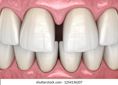 Diastema of central incisors teeth. Dental disfunction 3D illustration concept