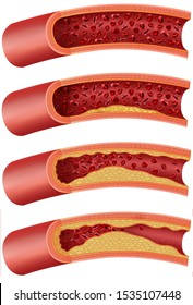 Different stages of the artery with atherosclerosis, with accumulation of cholesterol and fats in the walls, blocking with fatty material called plaque, this reduces the blood supply.