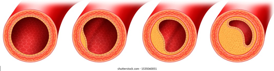 Different stages of atherosclerosis arterial disease, with accumulation of cholesterol and fat in the walls with reduced blood flow.