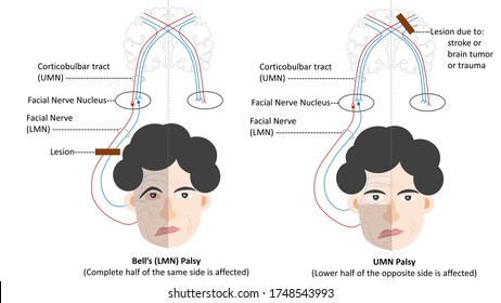 Differentiating features of Bell's palsy (LMN palsy) and UMN palsy
