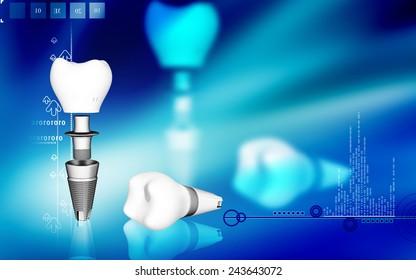 Digital illustration Dental implant in colour background