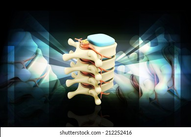 Digital illustration of Spinal column with nerves and discs in color background