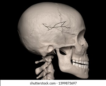 Digital medical illustration depicting a comminuted contiguous cranial vault fracture of the frontal-, parietal-and temporal bone (skull fracture). Lateral (side) view. 3D rendering