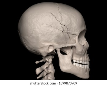 Digital medical illustration depicting a contiguous cranial vault fracture of the sphenoid-, frontal-and parietal bone (skull fracture). Lateral (side) view. 3D rendering