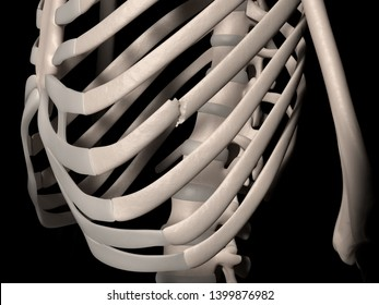 Digital medical illustration depicting a fracture of 7th rib (true rib, vertebrosternal rib, costa vera). Front perspective view. 3D rendering