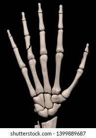 Digital medical illustration depicting a fracture of the 4th proximal phalanx of the hand. Rear/outside (dorsal) view. 3D rendering
