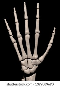 Digital medical illustration depicting a fracture of the 5th proximal phalanx of the hand. Rear/outside (dorsal) view. 3D rendering
