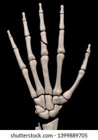 Digital medical illustration depicting a fracture of the 3rd proximal phalanx of the hand. Rear/outside (dorsal) view. 3D rendering