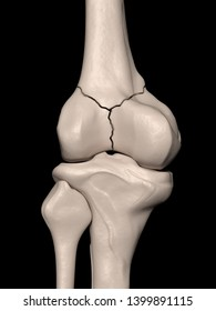 Digital medical illustration depicting an intra-articular distal femur (thighbone) fracture extending into the knee joint. Posterior (rear) view of knee. 3D rendering