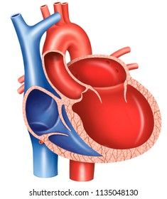 Dilated cardiomyopathy is a disease of the heart muscle, it becomes weak and elongated. The heart can not pump enough blood to the rest of the body.