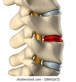 Disc degenerated by osteophyte formation