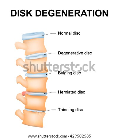 disc degeneration normal wear tear processのイラスト素材 429502585