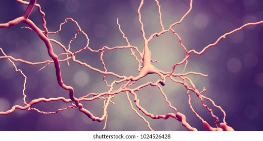 Dopaminergic neuron, computer reconstruction. Dysfunction of this brain cells are responsible for development of Parkinson's disease, autism and schizophrenia, 3D illustration
