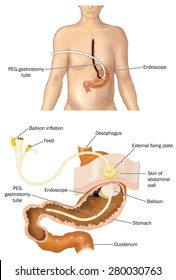 Drawing of a PEG tube, percutaneous endoscopic gastrostomy, with cross section of stomach showing the tube in place.