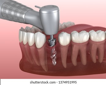 Drilling of bone while dental implant placement. Medically accurate 3D illustration of human teeth and dentures concept