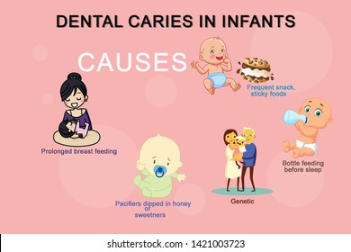 "Early childhood caries (ECC), also known as ""baby bottle caries,"" ""baby bottle tooth decay"" or ""bottle rot,"" is a pattern of decay found in young children with their deciduous (baby) teeth"