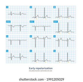 Early repolarization is mostly a benign ECG change, J point or J wave elevation, which is easily confused with acute pericarditis.