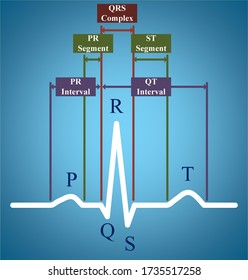 ECG or electrocardiogram showing PR interval and QT interval